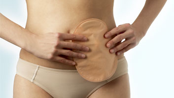 Why do I need to wear an ostomy pouch?